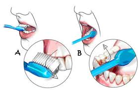 gosong gigi